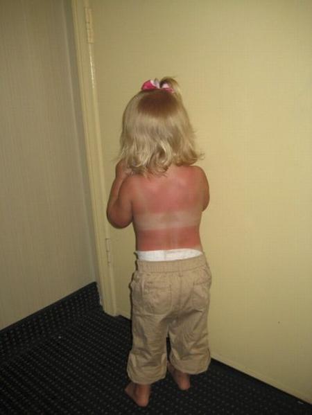 Niña con quemada de sol